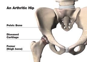arthritic_hip_w