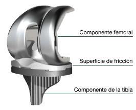 componente_femoral