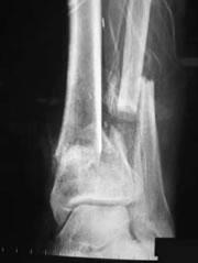 foot_ankle_arthritis