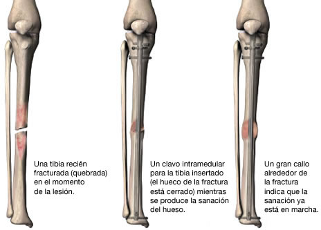 intramedular2