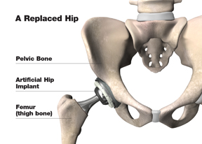 replaced_hip_w
