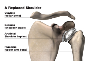replaced_shoulder_w