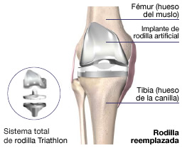 Reemplazo De Articulación De Rodilla Con Cirugía Mínimamente Invasiva Cmi Kambiz Behzadi M D Orthopedic Surgeon Specializing In Knee Hip Shoulder Replacement Sports Medicine