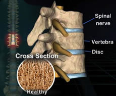spine_healthy