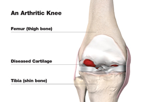 total_knee_arthritic_w