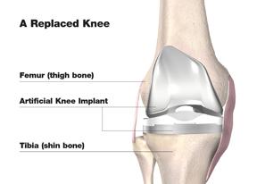 total_knee_repl_w